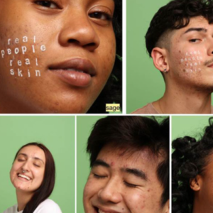 Clear Start Launches Acne Acceptance Month Campaign via Global Cosmetic Industry